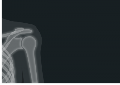 image of X-ray of shoulder